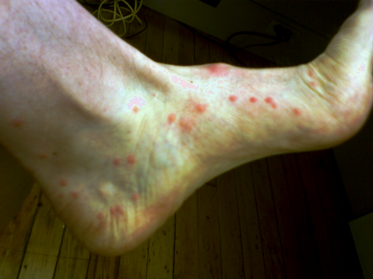 Picture of Flea Bites - WebMD