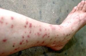 flea-bites-on-humans